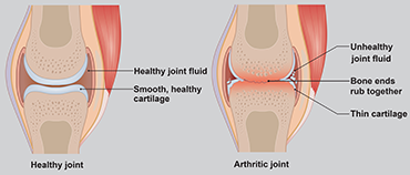 Illustration showing healthy joint vs one with arthritis