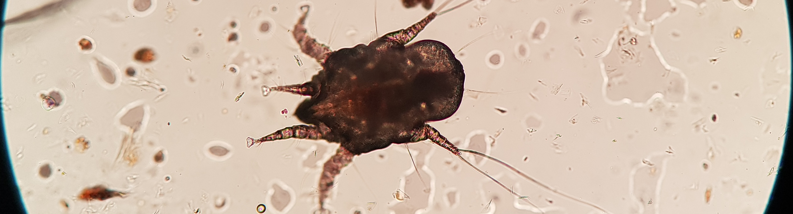 Microscopic image of ear mite
