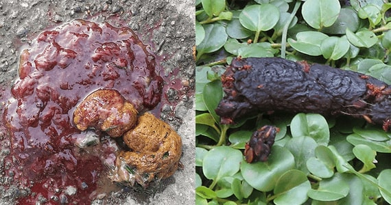 Photograph blood in poo and black poo,