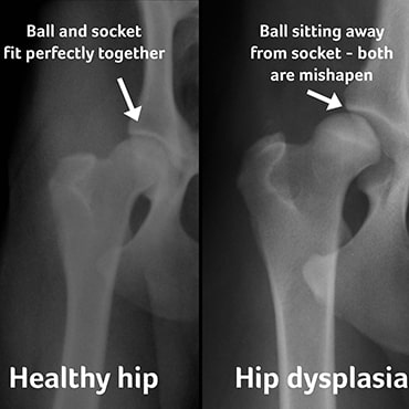 xrays showing healthy hip vs hip with dysplasia