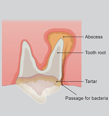 Illustration of tooth rot abscess