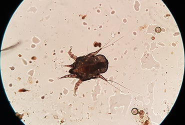 Photo of an ear mite under microscope