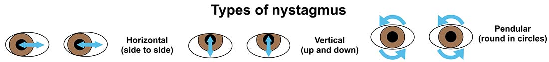 Illustration showing types of nystagmus